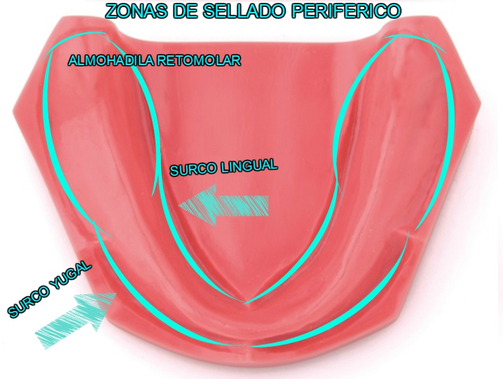 ZONAS DE SOPORTE/EDENTULO TOTAL – Rehabilitacion Oral